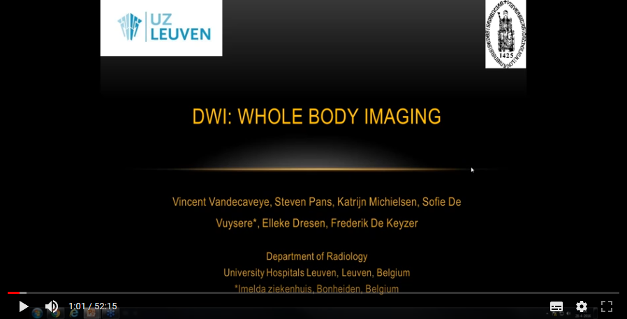 Whole body MRI in onology (2016)