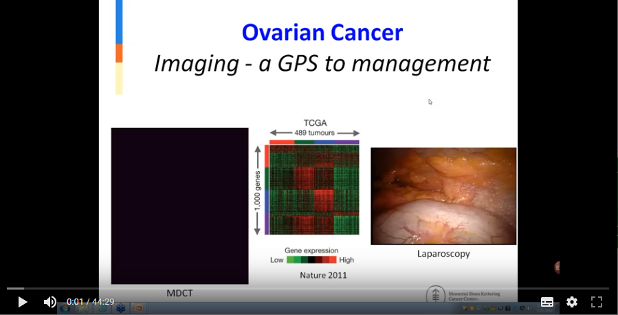 Staging of ovarian cancer – providing a GPS to patient management (2016)