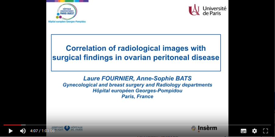 Correlation of radiological images with surgical findings in ovarian peritoneal disease (2019)